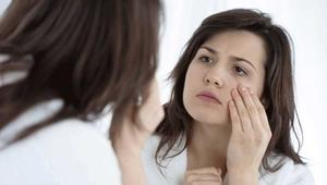 Simple home remedies to get rid of dark circles