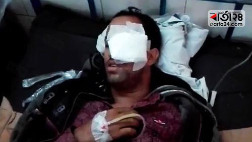 ইউপি নির্বাচন: কুমিল্লায় ভোট শুরুর আগেই গুলিতে আহত ৫
