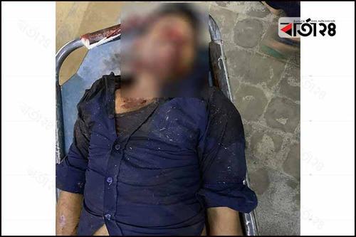 চট্টগ্রামে 'বন্দুকযুদ্ধে' তালিকাভুক্ত ছিনতাইকারী নিহত