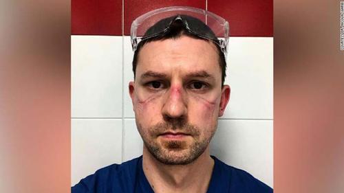 Face of a corona health worker Dr. Nicola Sagarbi