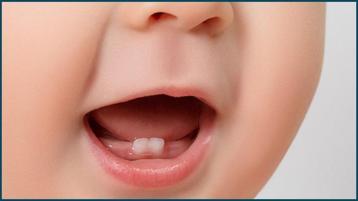 baby milk teeth