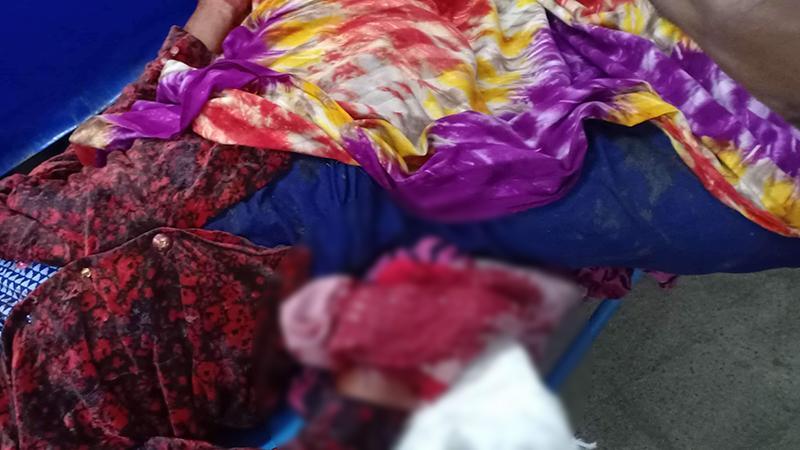 চাঁপাইনবাবগঞ্জে পরিত্যক্ত ককটেলে উড়ে গেল শিশুর হাত
